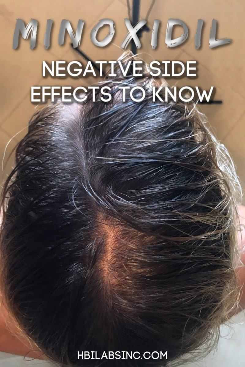 You should understand the extent of minoxidil side effects before you start using it for hair loss or as a way to regrow hair. Hair Regrowth Side Effects | Minoxidil Health Risks | Healthy Hair Regrowth | Healthy Hair Growth Options | Hair Loss Tips | Tips to Stop Hair Loss | Men's Hair Care Ideas #haircare #health