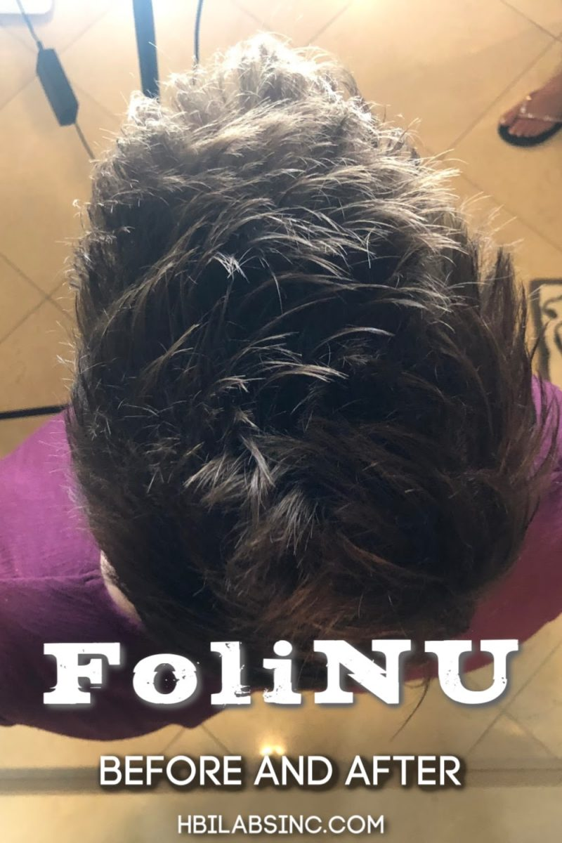 Wondering if FoliNu will work for you? Watch this FoliNu before and after testimonial to see how FoliNu worked first hand. Hair Care Treatments | Hair Loss Treatments | Hair Care Tips for Men | Hair Care Tips for Women | Hair Loss Tips for Men | Hair Supplements That Work #haircare #health