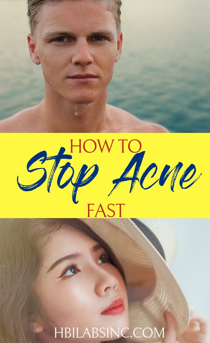 Living with acne and unclear skin can be uncomfortable and stressful. Stop acne fast and enjoy a life with clear skin with these tips.#acne #skincare #beauty #beautytips #acnetips #cureacne #acnecures