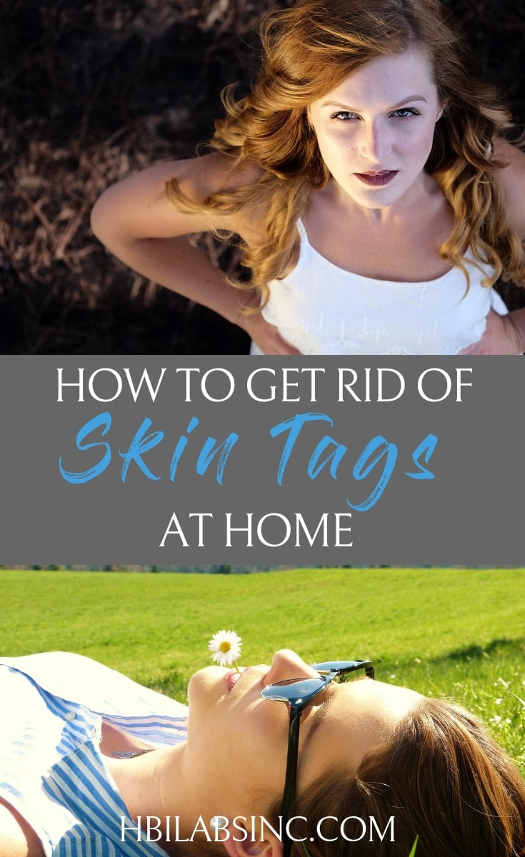 Skin tags are a problem for many people, but you can get rid of skin tags at home naturally and skip the visit to the doctor's office. Beauty Tips | How to Remove Skin Tags | What are Skin Tags | Clear Skin Tips #skin #beauty #beautytips